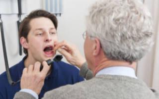 Почему болит горло после курения