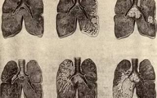 Признаки проявления рака легких у мужчин
