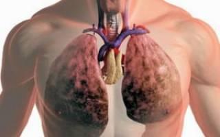 Боль в легких от курения